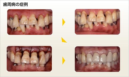 歯周病の症例